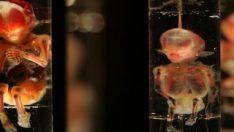 ABD'de ölen doktorun evinde ölü fetüsler çıktı