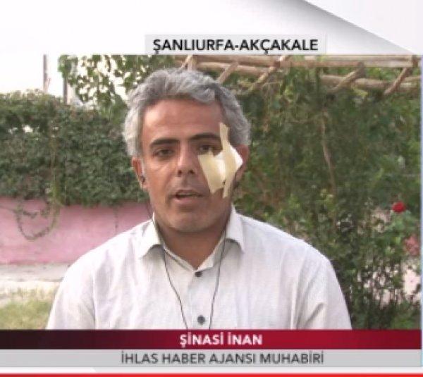 İHA muhabiri Şinasi İnan şarapnel parçasıyla yaralandı