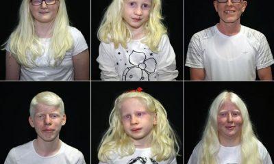 Adanalı albinolar, 4 mevsim gölge arıyor