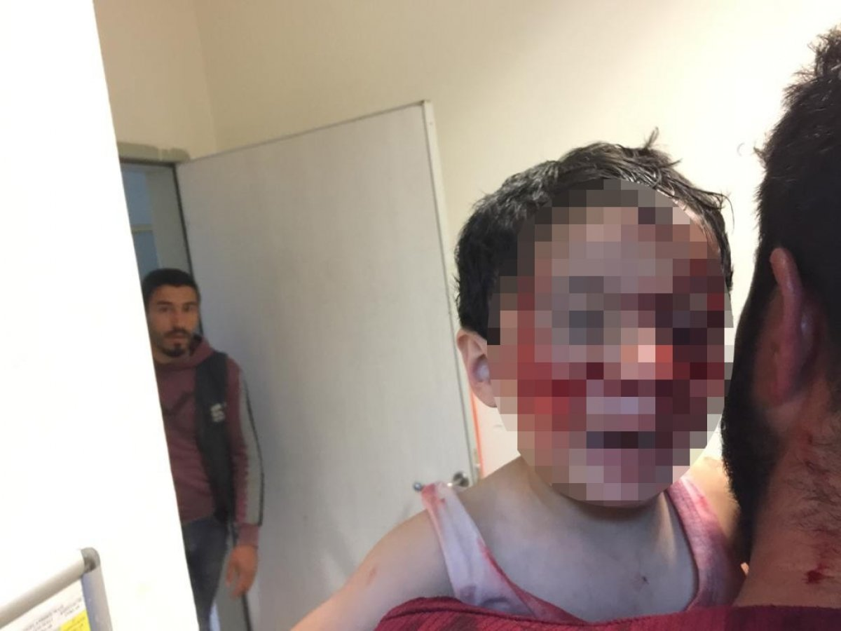 Şanlıurfa'da sokak köpekleri 6 çocuğa saldırdı